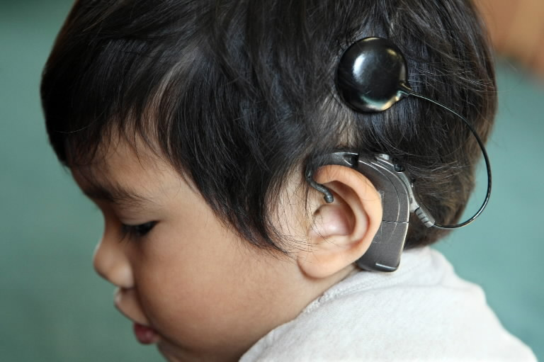 children and hearing loss